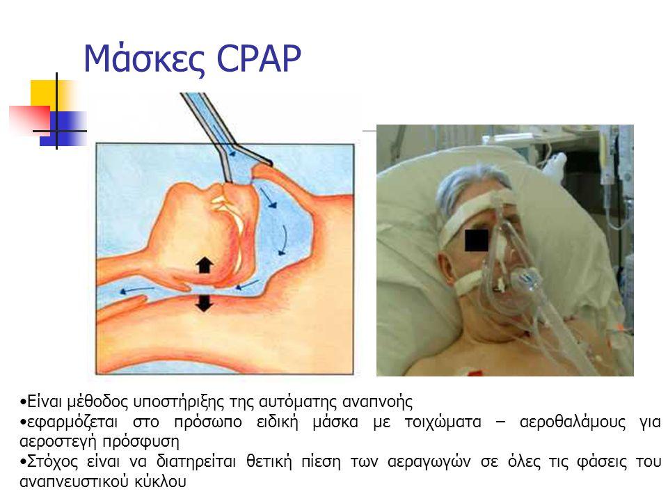 Μάσκες CPAP Είναι μέθοδος υποστήριξης της αυτόματης αναπνοής