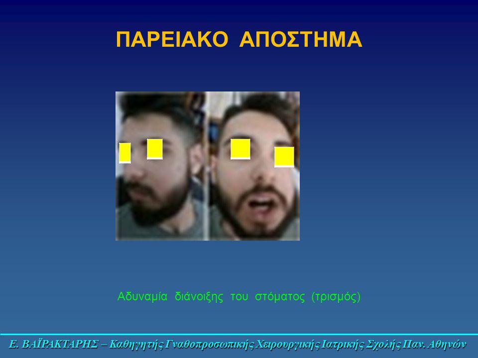 Αδυναμία διάνοιξης του στόματος (τρισμός)