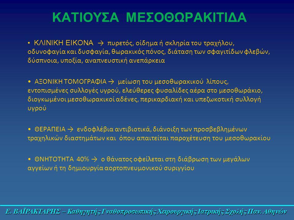 ΚΑΤΙΟΥΣΑ ΜΕΣΟΘΩΡΑΚΙΤΙΔΑ