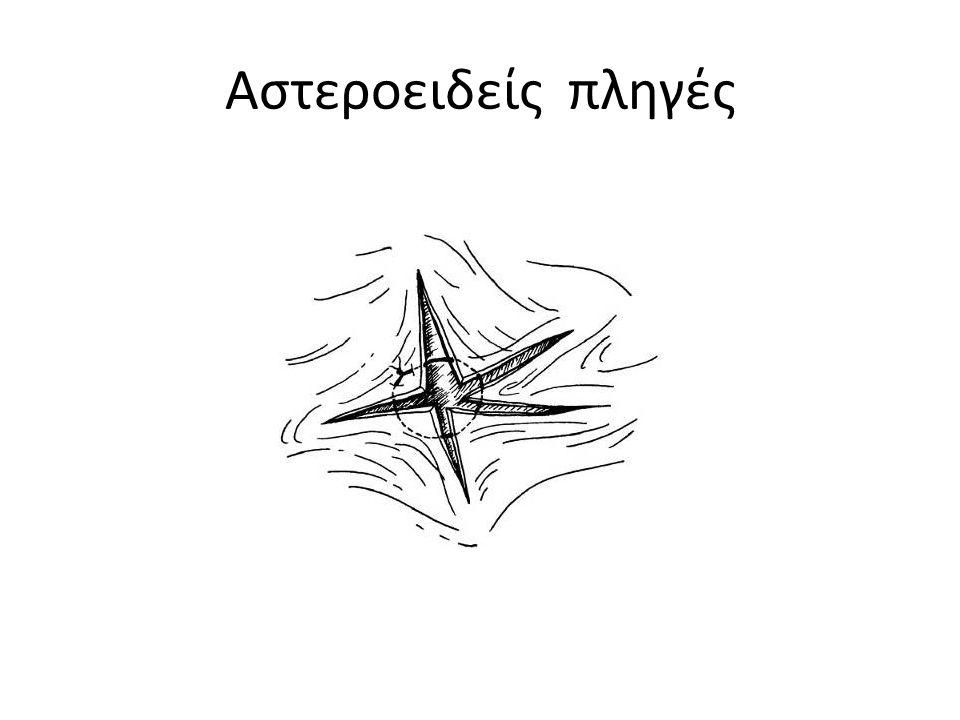 Αστεροειδείς πληγές