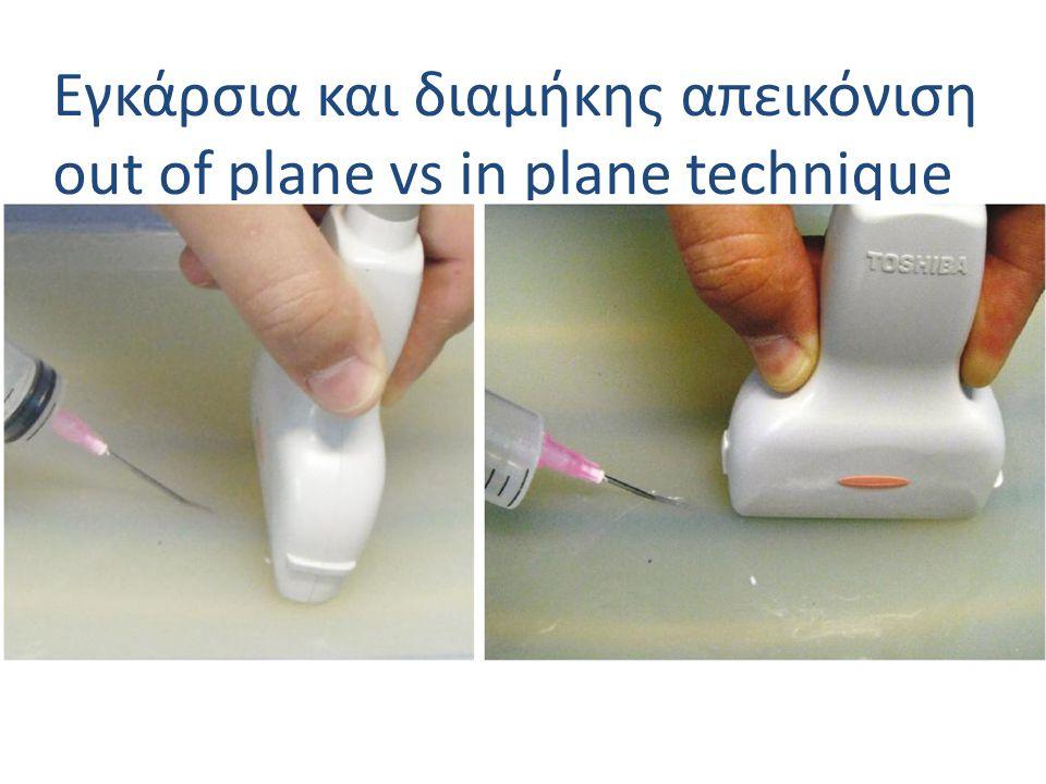 Εγκάρσια και διαμήκης απεικόνιση out of plane vs in plane technique