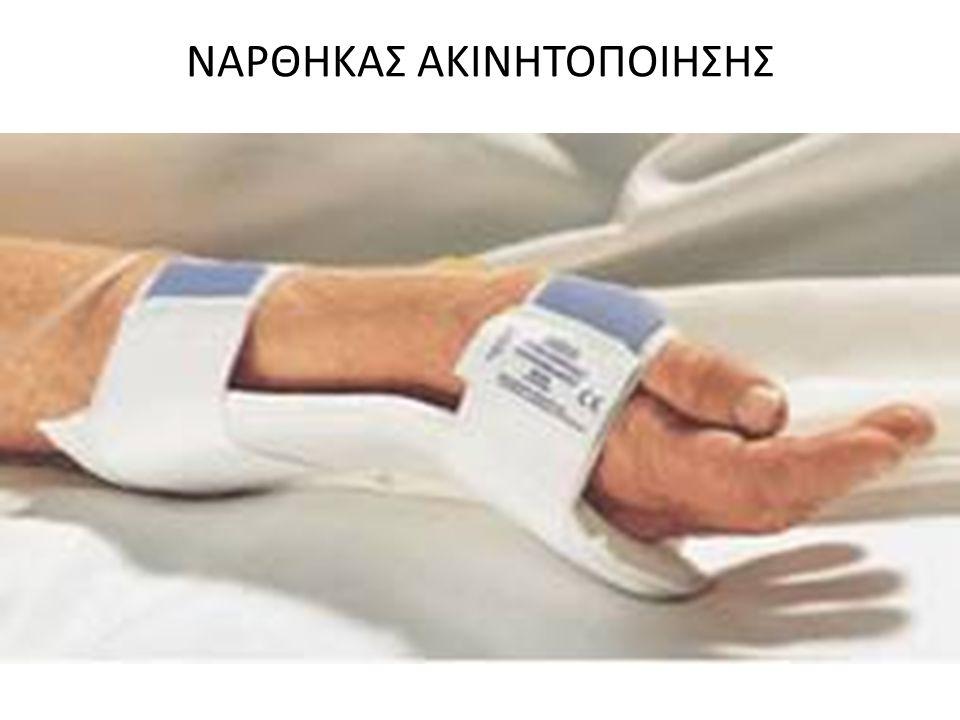ΝΑΡΘΗΚΑΣ ΑΚΙΝΗΤΟΠΟΙΗΣΗΣ