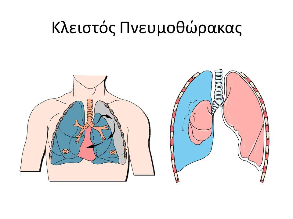 Κλειστός Πνευμοθώρακας