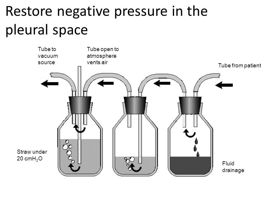 Restore negative pressure in the pleural space