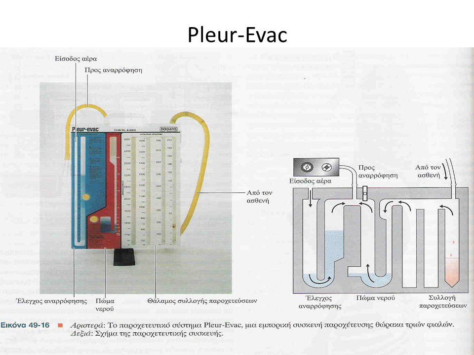 Pleur-Evac 88