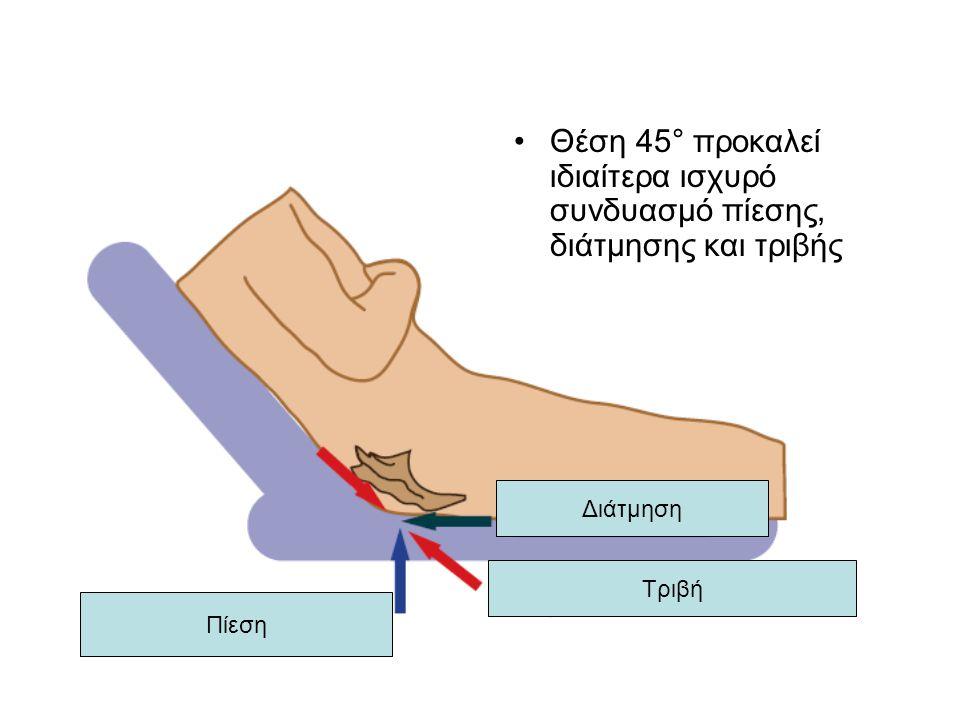 Θέση 45° προκαλεί ιδιαίτερα ισχυρό συνδυασμό πίεσης, διάτμησης και τριβής