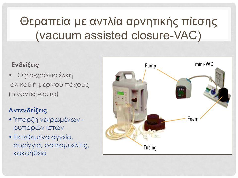 Θεραπεία με αντλία αρνητικής πίεσης (vacuum assisted closure-VAC)