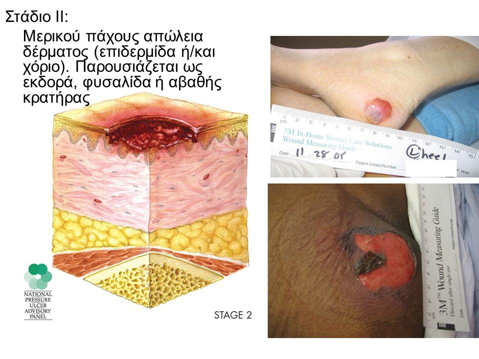 Στάδιο ΙΙ: Μερικού πάχους απώλεια δέρματος (επιδερμίδα ή/και χόριο).