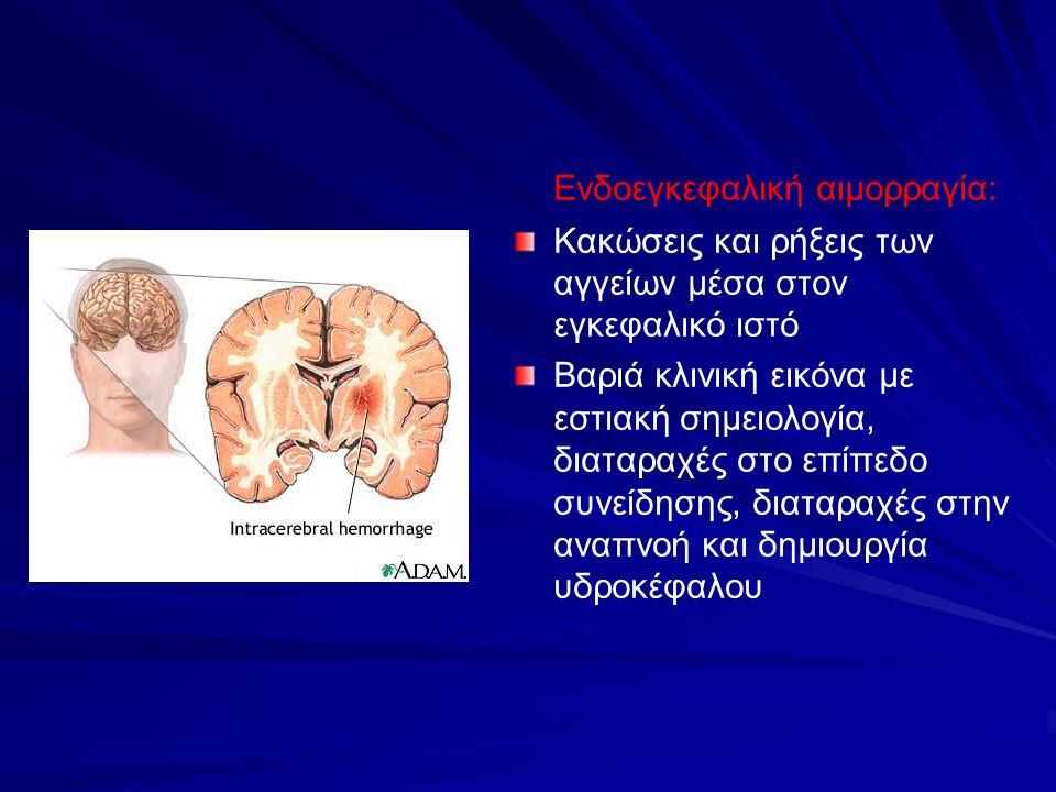 Ενδοεγκεφαλική αιμορραγία: