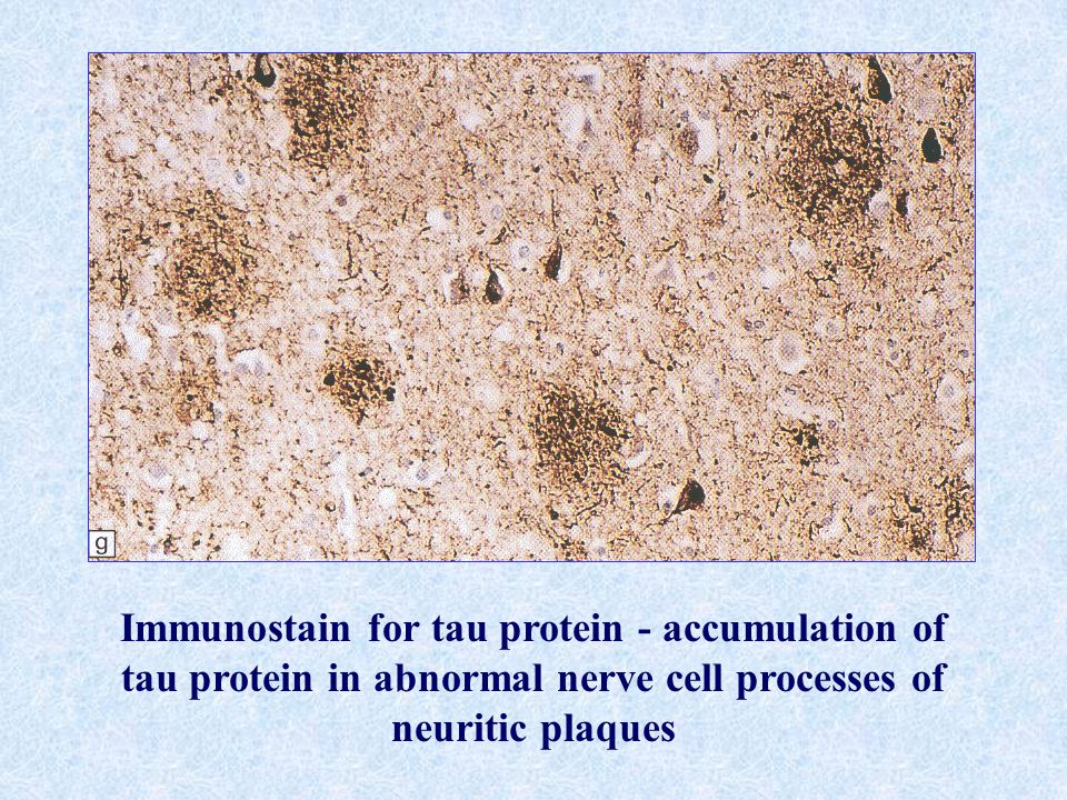 Immunostain for tau protein - accumulation of tau protein in abnormal nerve cell processes of neuritic plaques