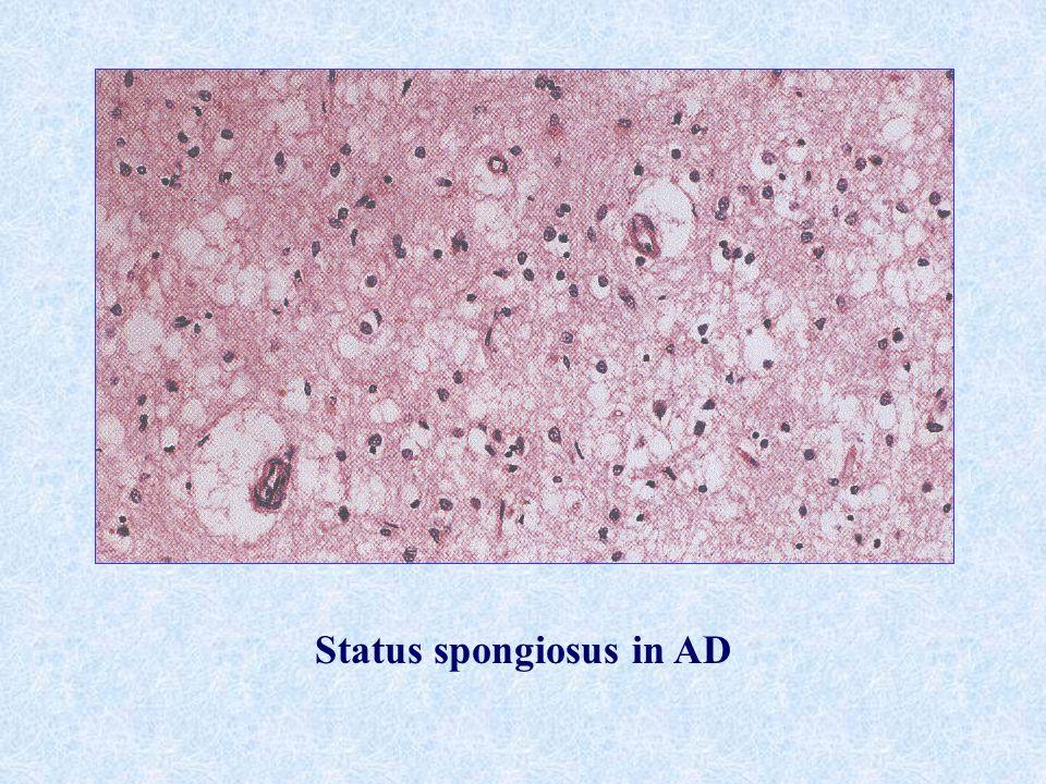 Status spongiosus in AD