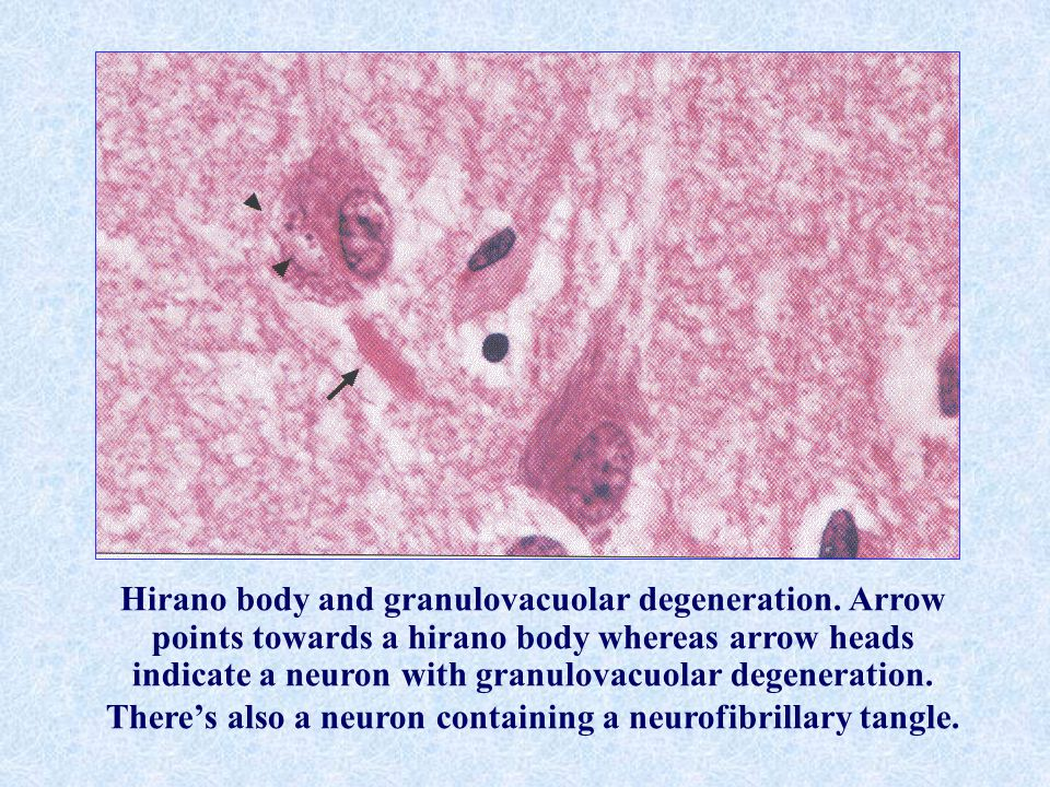 Hirano body and granulovacuolar degeneration