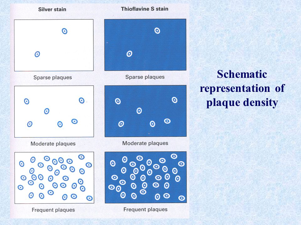 Schematic representation of plaque density