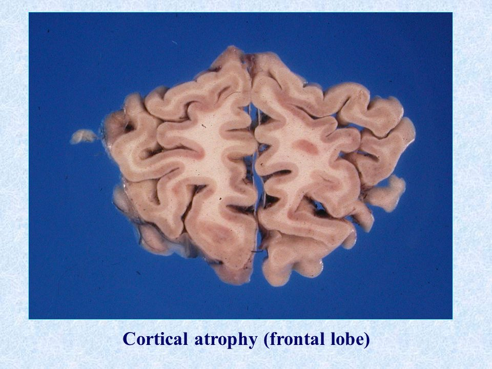 Cortical atrophy (frontal lobe)