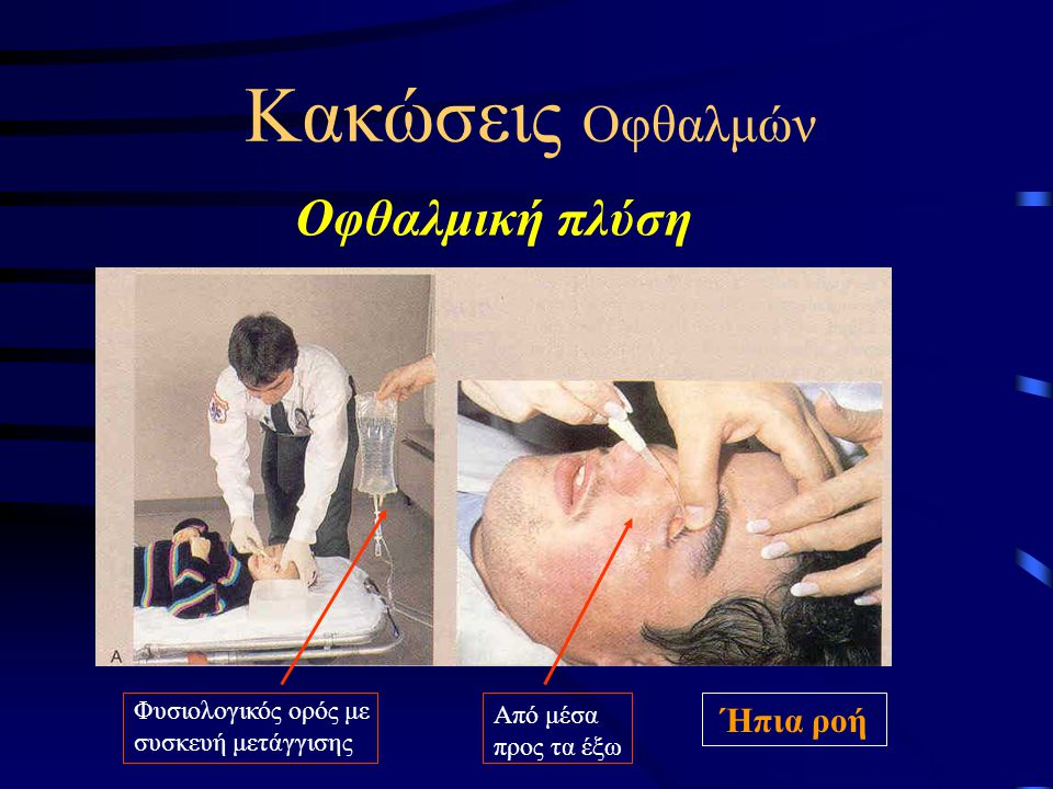 Κακώσεις Οφθαλμών Οφθαλμική πλύση Ήπια ροή