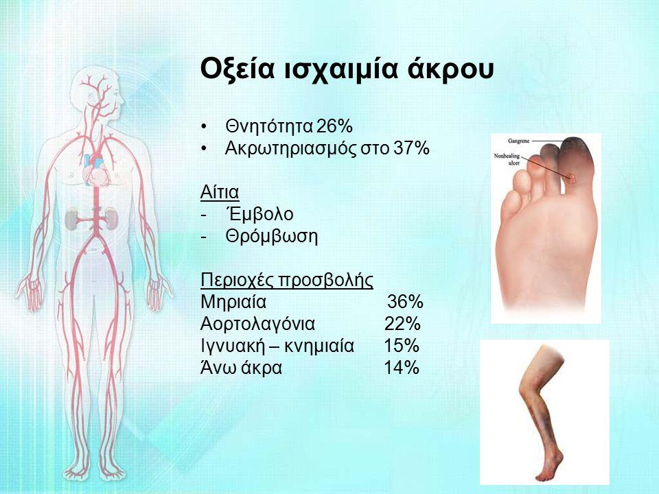 Οξεία ισχαιμία άκρου Θνητότητα 26% Ακρωτηριασμός στο 37% Αίτια