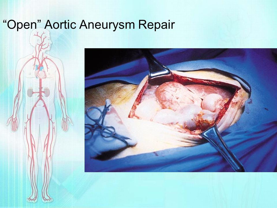 Open Aortic Aneurysm Repair