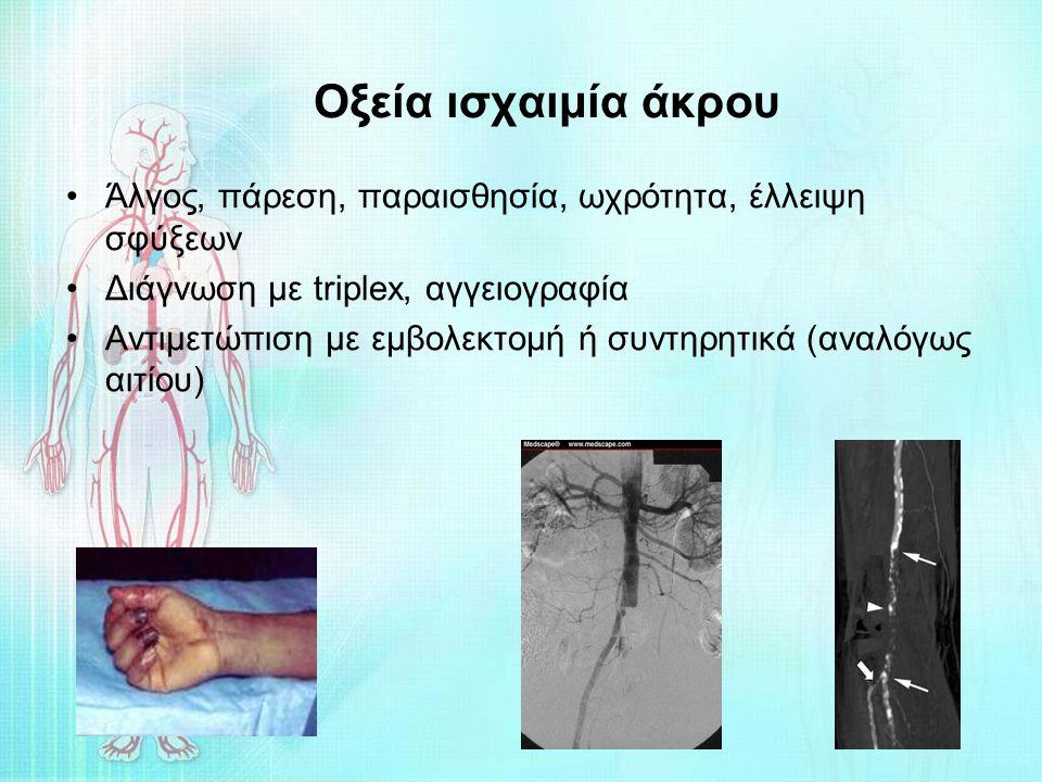 Οξεία ισχαιμία άκρου Άλγος, πάρεση, παραισθησία, ωχρότητα, έλλειψη σφύξεων. Διάγνωση με triplex, αγγειογραφία.