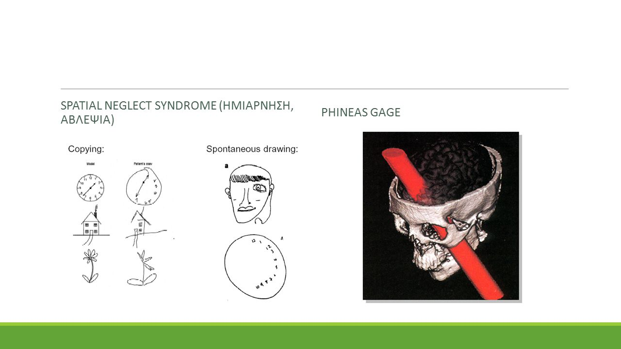 Spatial Νeglect syndrome (ημιαρνηση, αβλεψια)