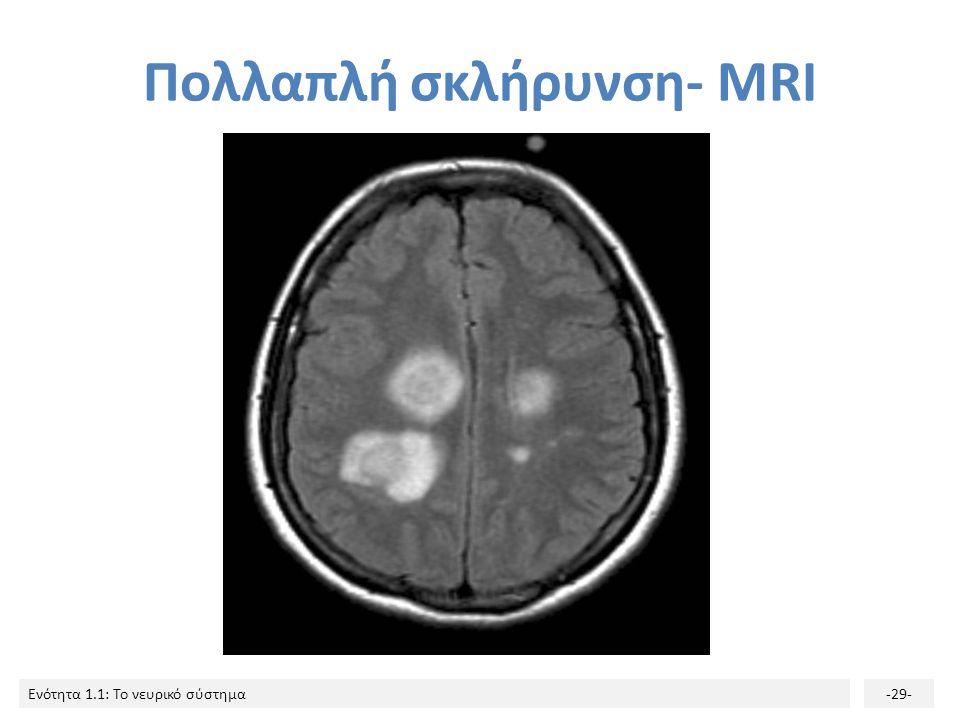 Πολλαπλή σκλήρυνση- MRI