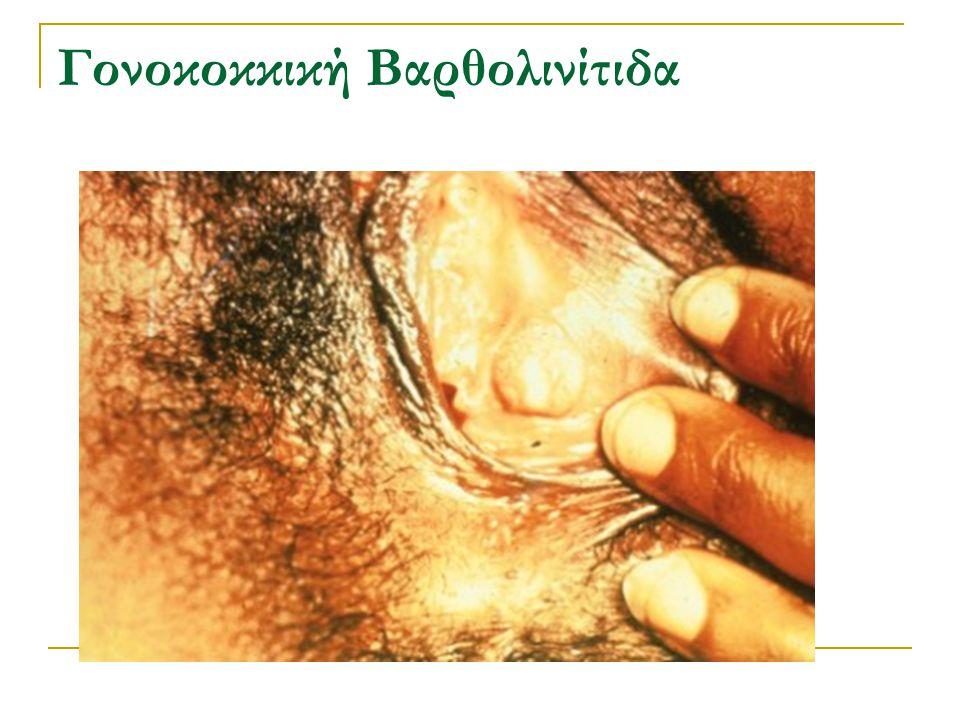 Γονοκοκκική Βαρθολινίτιδα