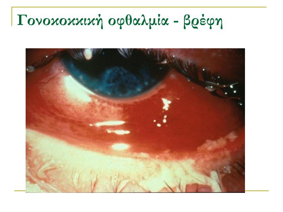 Γονοκοκκική οφθαλμία - βρέφη