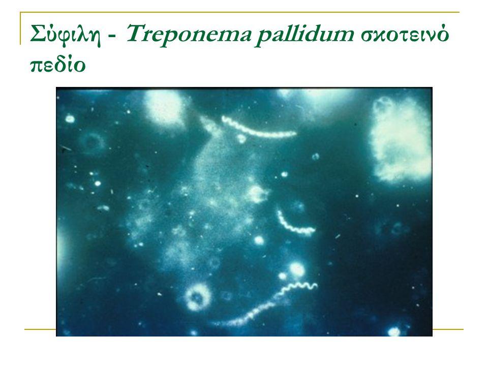 Σύφιλη - Treponema pallidum σκοτεινό πεδίο