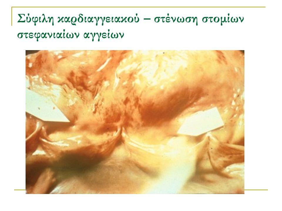 Σύφιλη καρδιαγγειακού – στένωση στομίων στεφανιαίων αγγείων