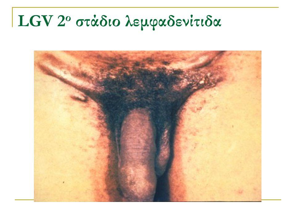 LGV 2ο στάδιο λεμφαδενίτιδα