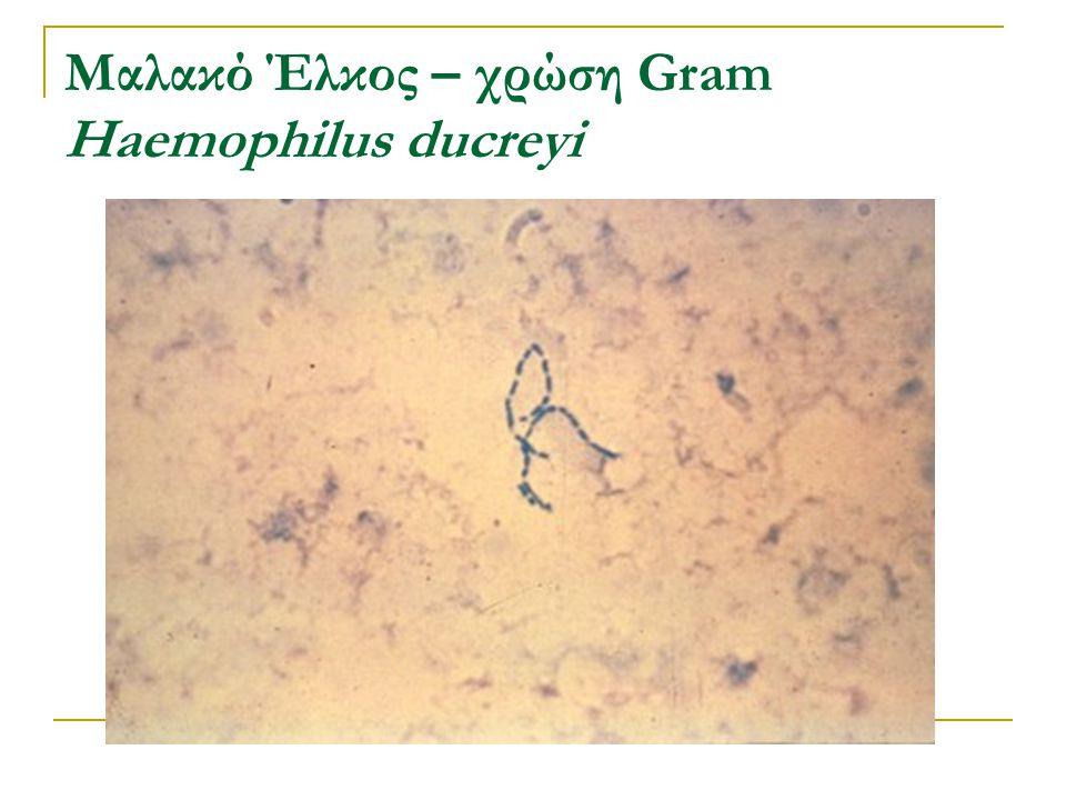 Μαλακό Έλκος – χρώση Gram Haemophilus ducreyi