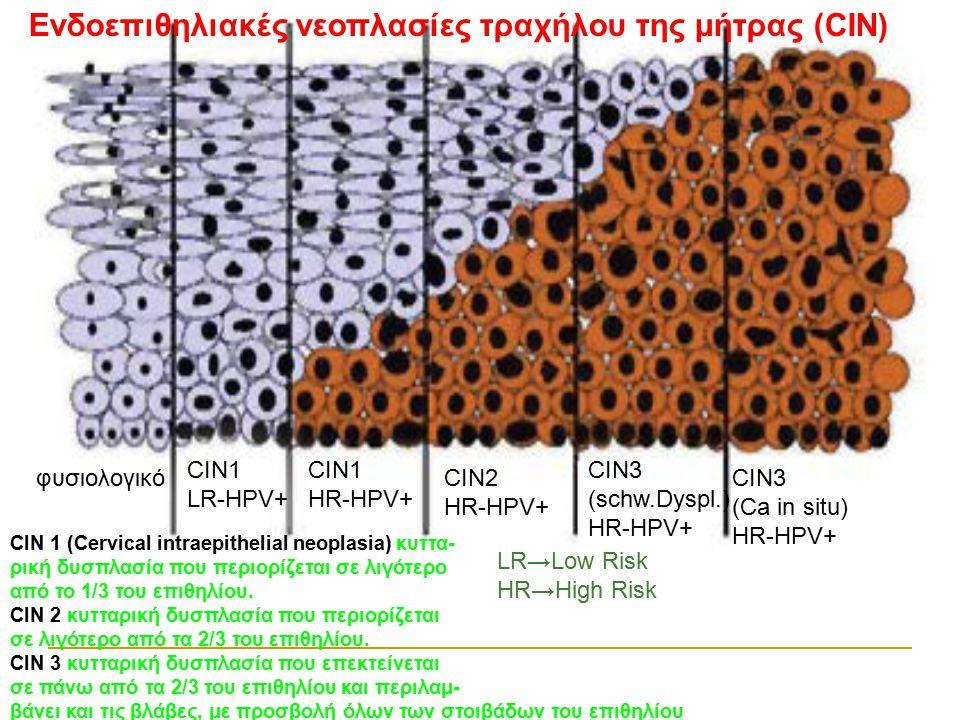 Ενδοεπιθηλιακές νεοπλασίες τραχήλου της μήτρας (CIN)