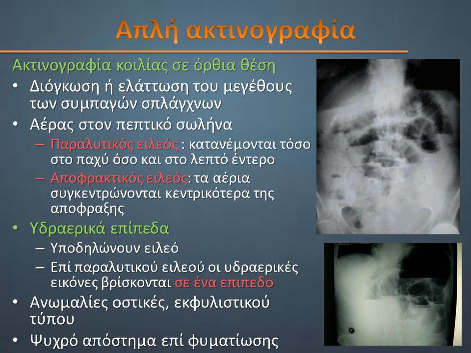 Απλή ακτινογραφία Ακτινογραφία κοιλίας σε όρθια θέση
