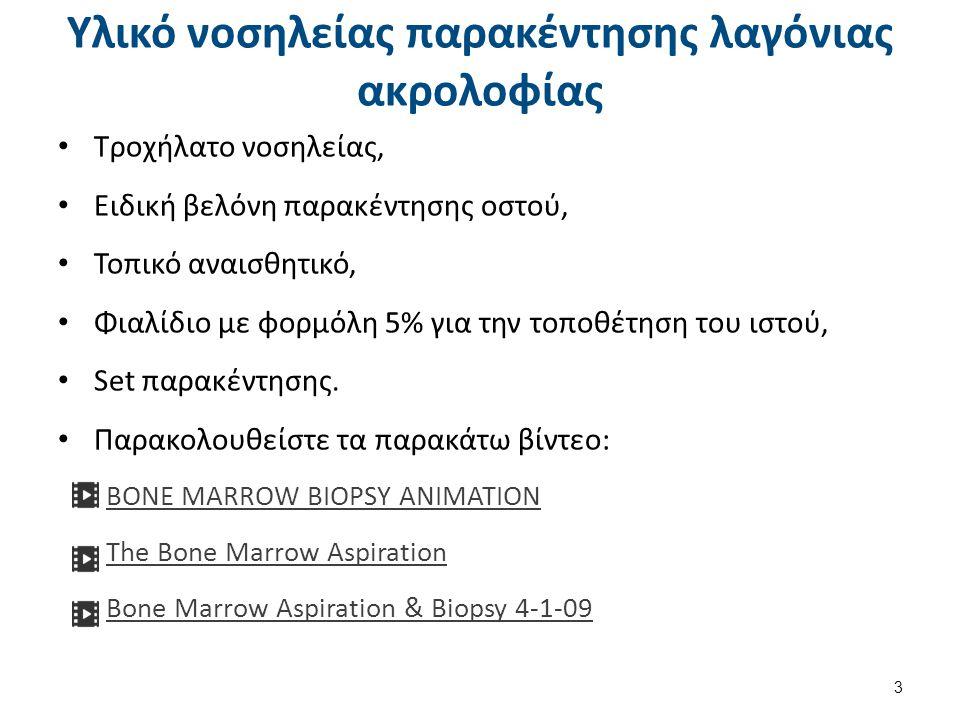 Bone marrow biopsy , από AxelBoldt διαθέσιμο ως κοινό κτήμα
