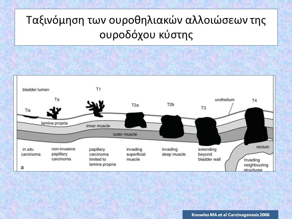 Ταξινόμηση των ουροθηλιακών αλλοιώσεων της ουροδόχου κύστης