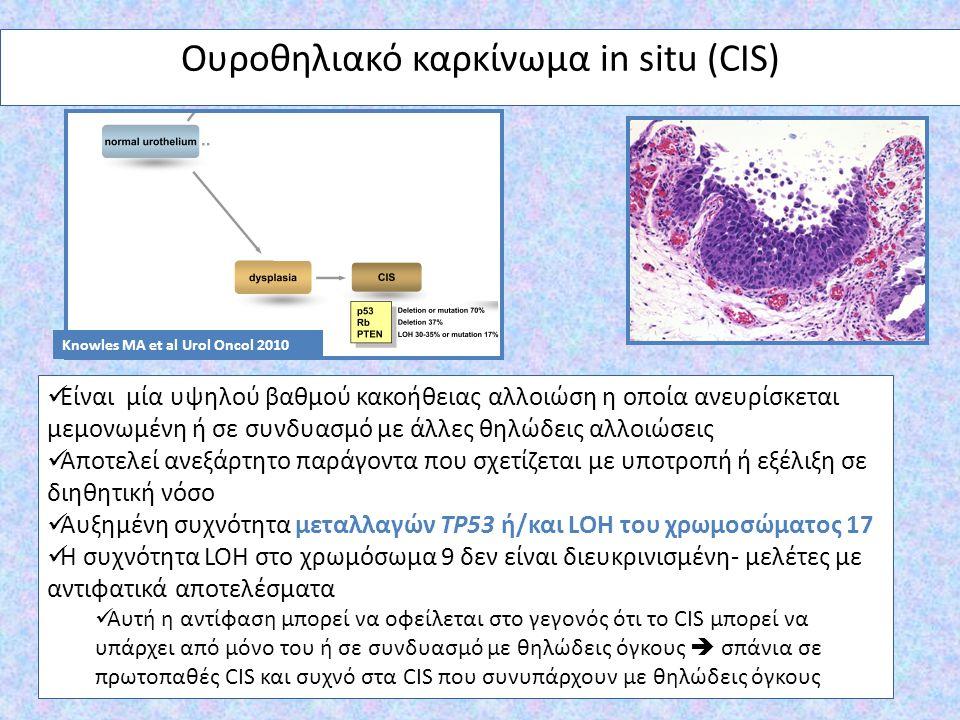 Ουροθηλιακό καρκίνωμα in situ (CIS)