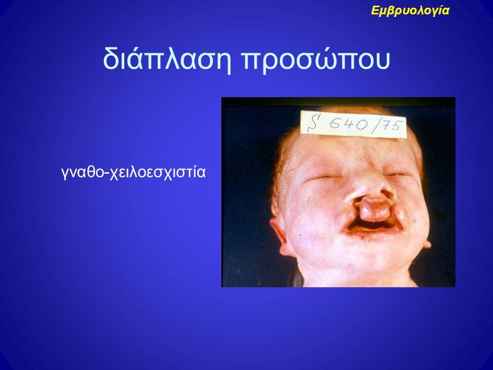 Εμβρυολογία διάπλαση προσώπου γναθο-χειλοεσχιστία