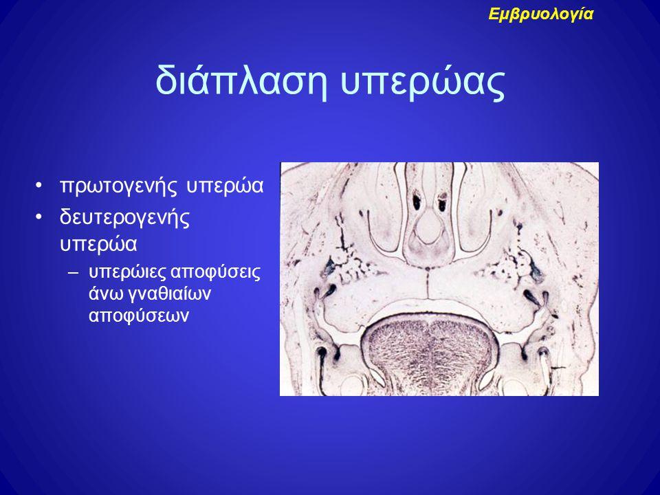 διάπλαση υπερώας πρωτογενής υπερώα δευτερογενής υπερώα