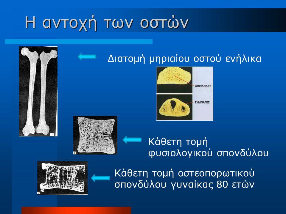 Η αντοχή των οστών Διατομή μηριαίου οστού ενήλικα