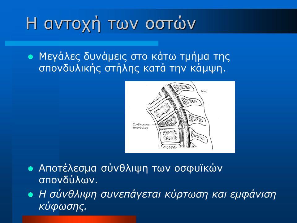 Η αντοχή των οστών Μεγάλες δυνάμεις στο κάτω τμήμα της σπονδυλικής στήλης κατά την κάμψη. Αποτέλεσμα σύνθλιψη των οσφυϊκών σπονδύλων.