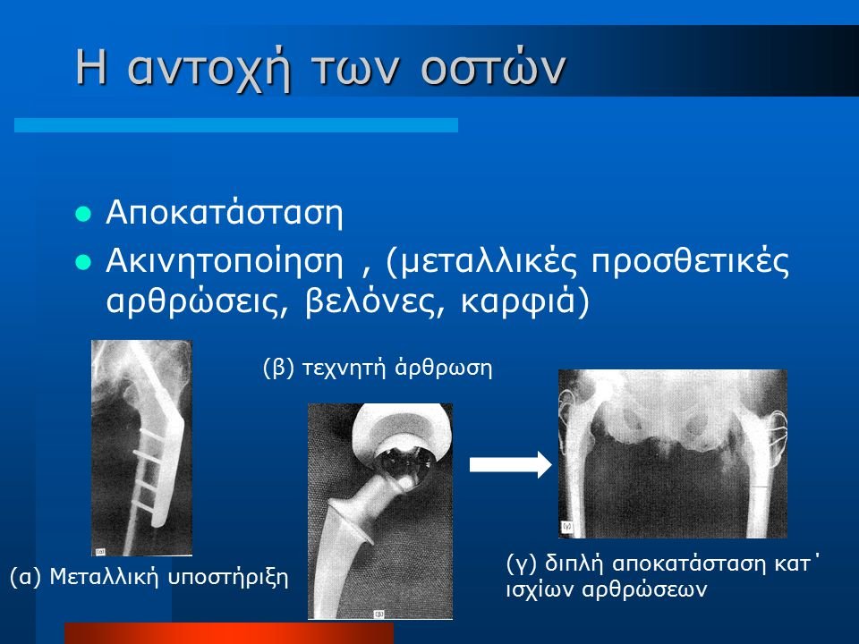 Η αντοχή των οστών Αποκατάσταση