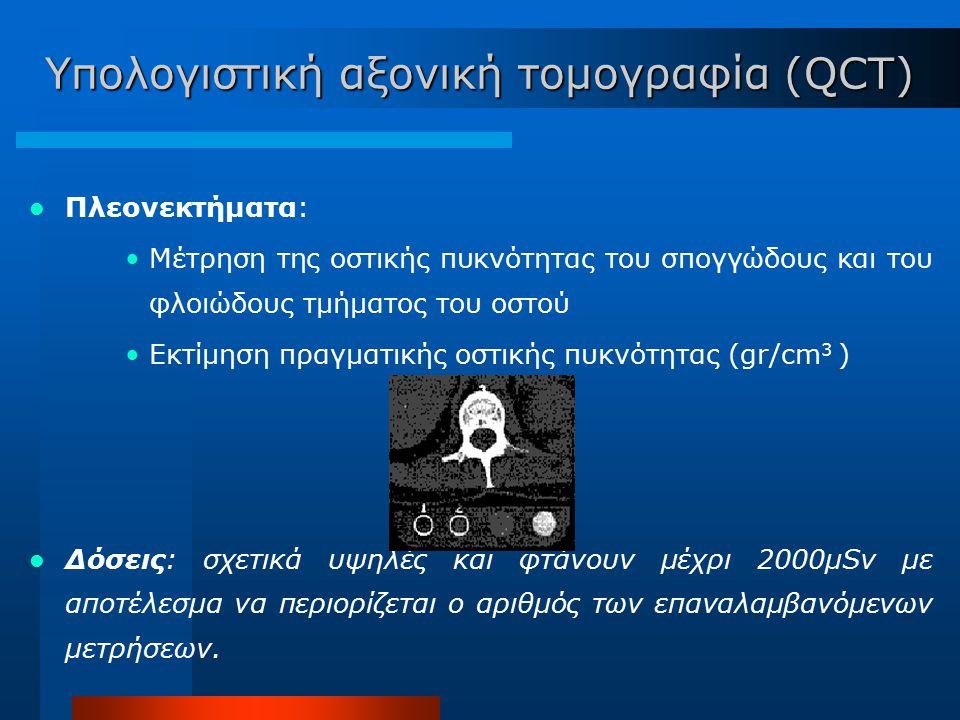Υπολογιστική αξονική τομογραφία (QCT)
