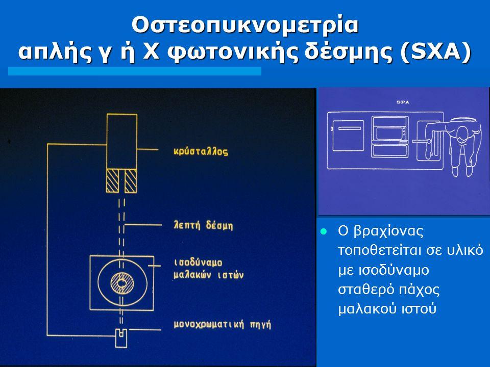 Οστεοπυκνομετρία απλής γ ή Χ φωτονικής δέσμης (SΧA)