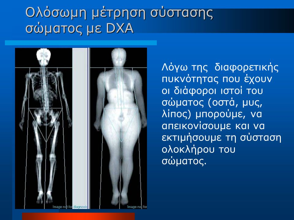 Ολόσωμη μέτρηση σύστασης σώματος με DXA