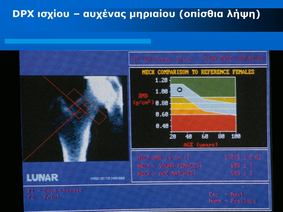 DPX ισχίου – αυχένας μηριαίου (οπίσθια λήψη)