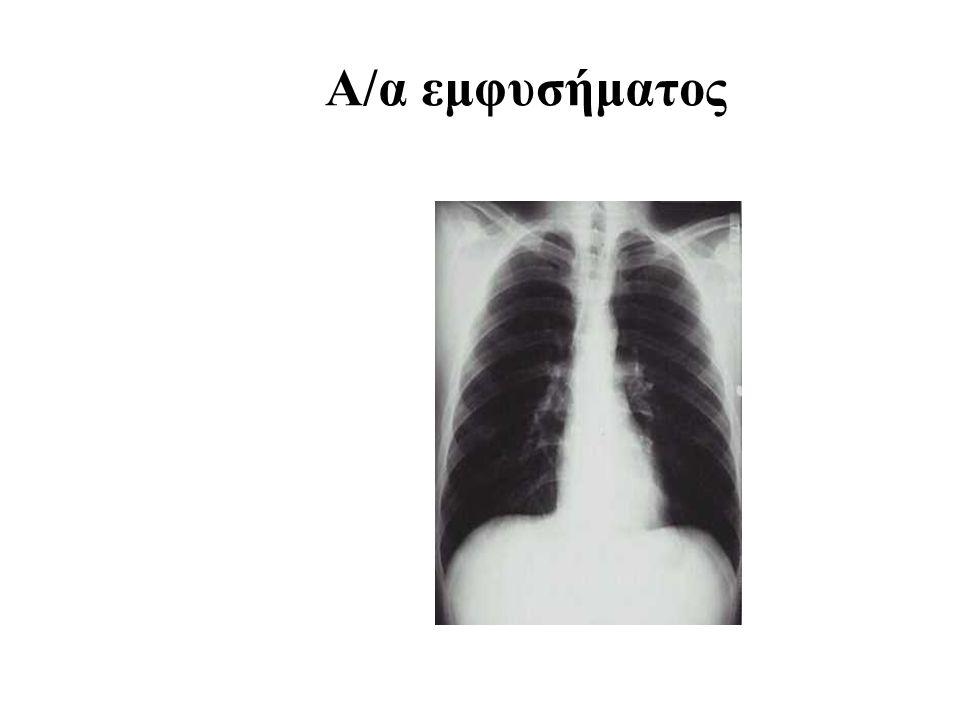 Α/α εμφυσήματος 17