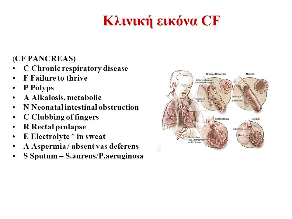 Κλινική εικόνα CF C Chronic respiratory disease F Failure to thrive