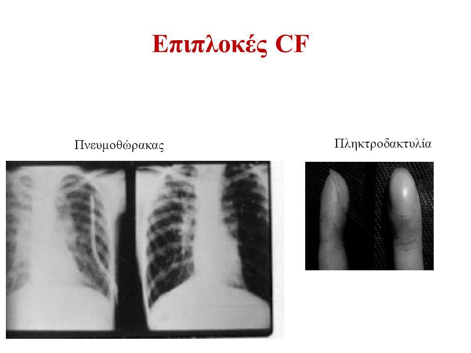 Επιπλοκές CF Πνευμοθώρακας Πληκτροδακτυλία 83