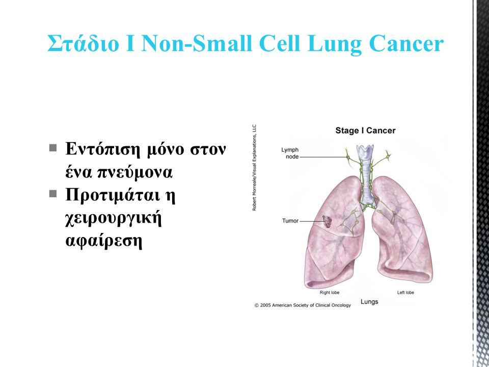 Στάδιο Ι Non-Small Cell Lung Cancer