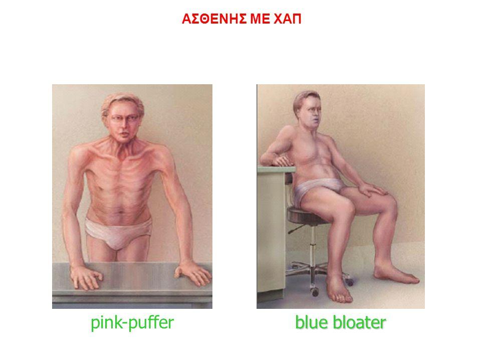 ΑΣΘΕΝΗΣ ΜΕ ΧΑΠ Εμφύσημα Χρόνια Βρογχίτιδα pink-puffer blue bloater R