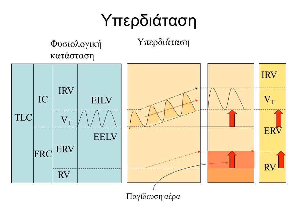 Υπερδιάταση Υπερδιάταση Φυσιολογική κατάσταση IRV IRV IC VT EILV TLC